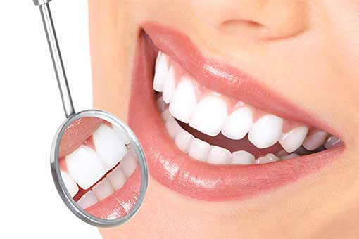 how often to whiten teeth at home