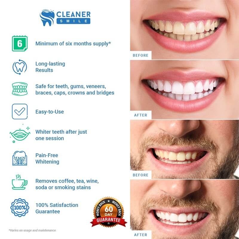 Regular-Teeth-Whitening-Kit-Snapshot-Infographic