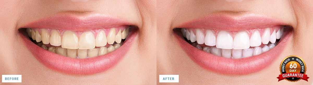 before-after-teeth-whitening-results
